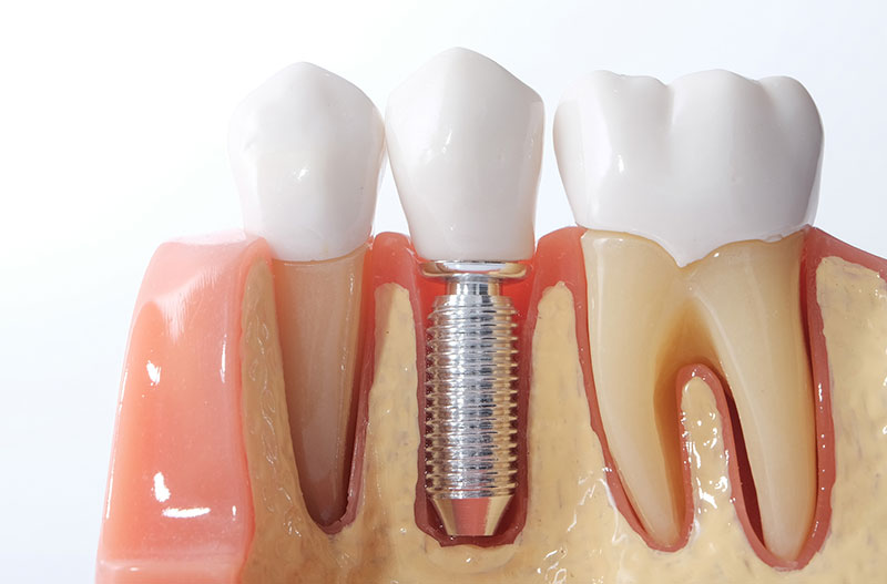 brookemeredental_blog_what_are_the_benefits_of_dental_implants